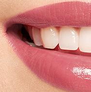 Glossy Lippen